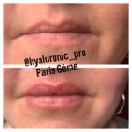 Lèvres repulpées